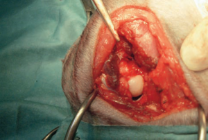 femoral head osteotomy with much reduced intra- operative bleeding