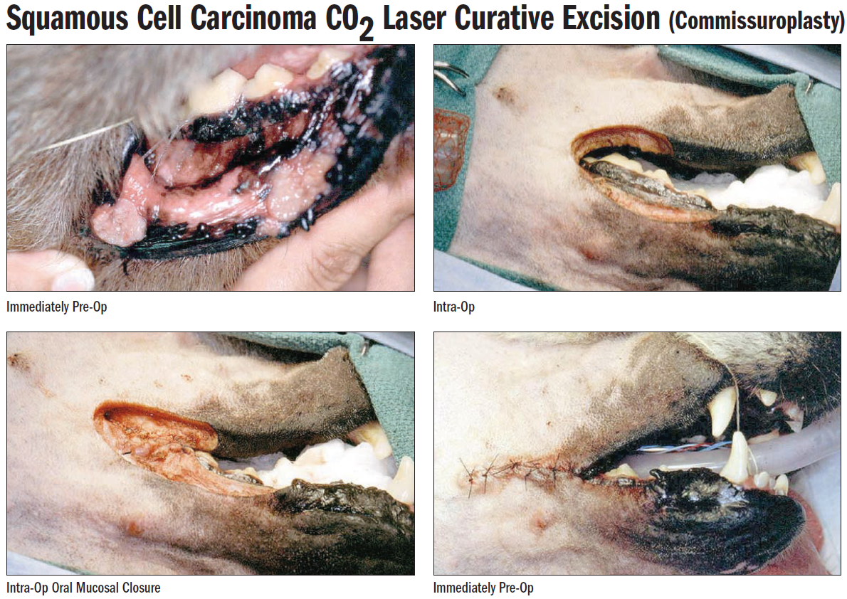Squamous Cell Carcinoma CO2 Laser Curative Excision