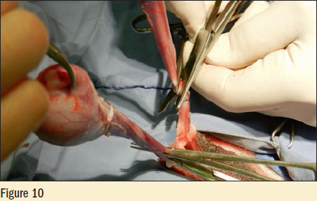 Figure 10 - The cord is double clamped with mosquito hemostats and the cord is cut between the hemostats with scissors or laser