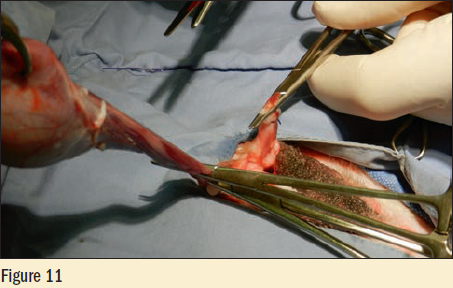 Figure 11 - The cord is double clamped with mosquito hemostats and the cord is cut between the hemostats with scissors or laser