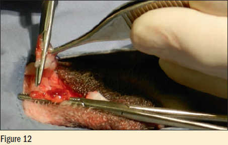 Figure 12 - The hemostat is removed from the cords and they are observed for hemorrhage