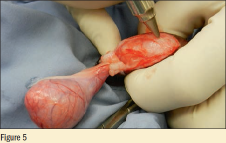 Figure 5 - The second testicle is pressed to the incision with a laser and the fascia is opened to the level of the vaginal tunic