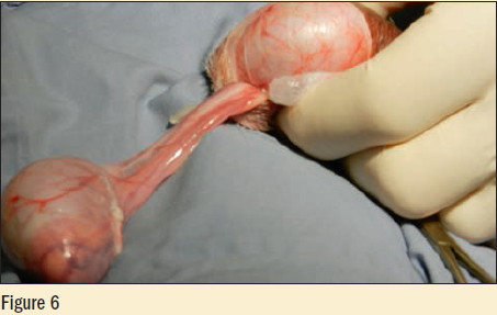 Figure 6 - second testicle is also exteriorized, elevated and the spermatic cord is cleaned of fat and connective tissues