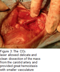 Figure 3 - CO2 laser clean dissection